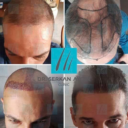 Foto di trapianto di capelli prima e dopo 1