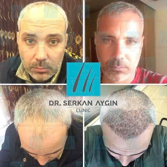 Foto di trapianto di capelli prima e dopo 11