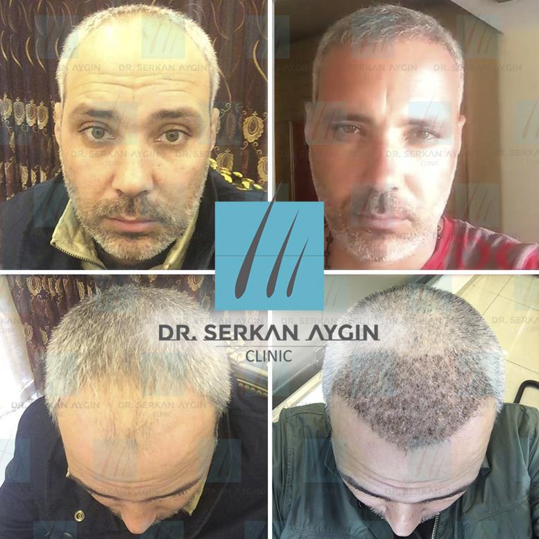 dr serkan trapianto capelli