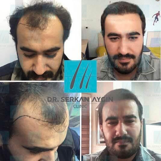 Foto di trapianto di capelli prima e dopo 13