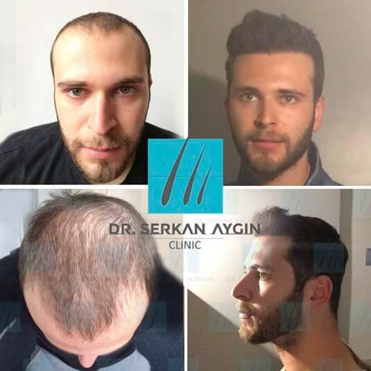 Foto di trapianto di capelli prima e dopo 41