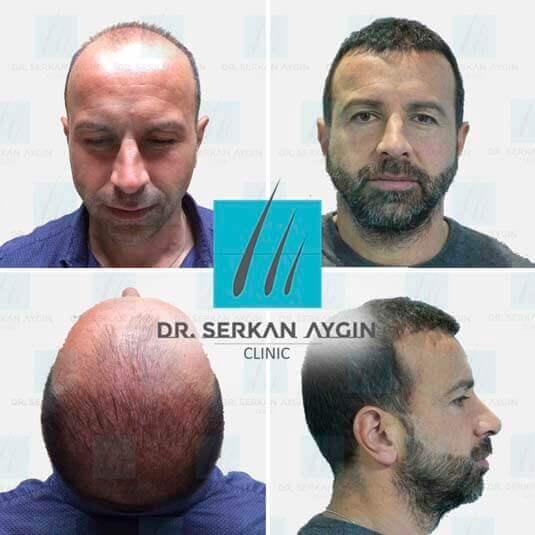 Foto di trapianto di capelli prima e dopo 15