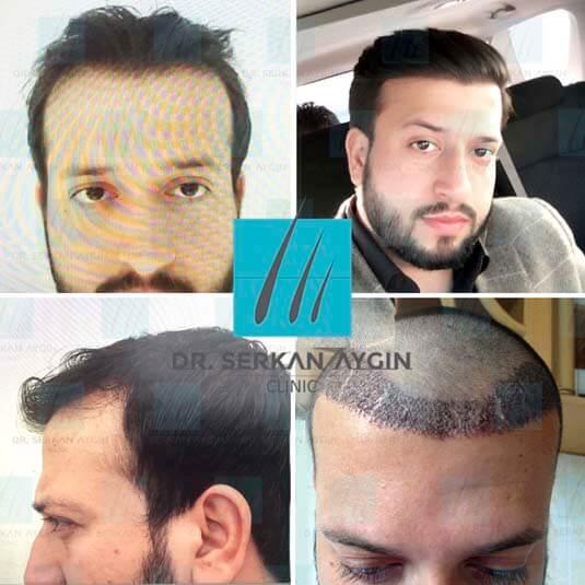 Foto di trapianto di capelli prima e dopo 2