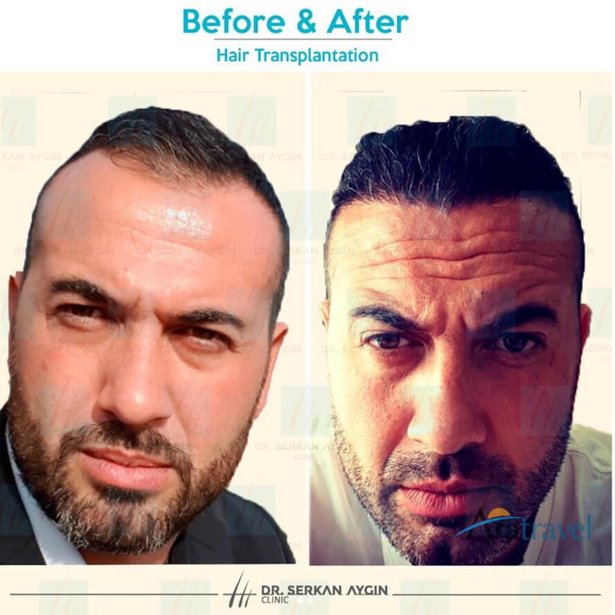 Foto di trapianto di capelli prima e dopo 01