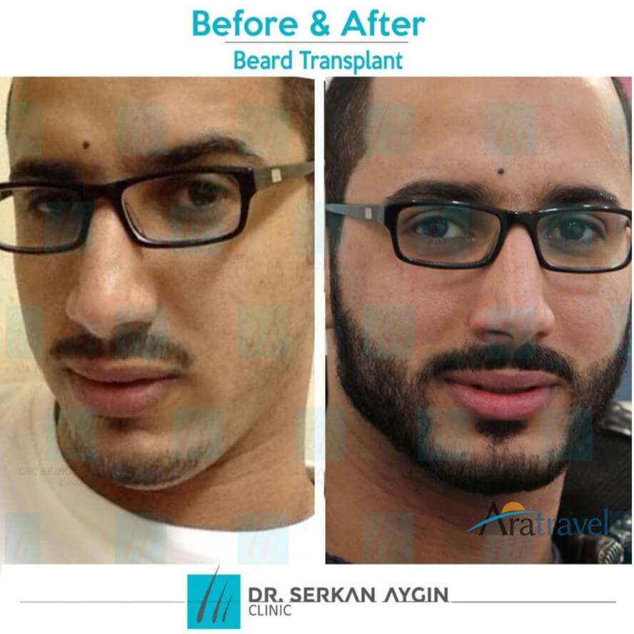 Foto di trapianto di capelli prima e dopo 02