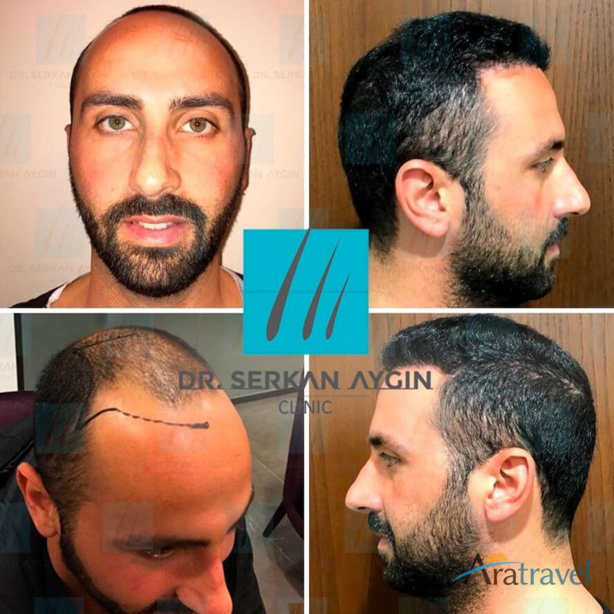 Foto di trapianto di capelli prima e dopo 03