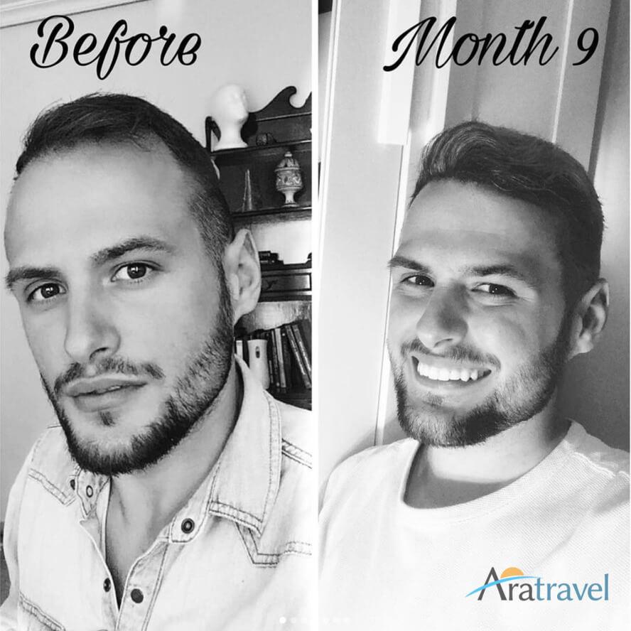 Foto di trapianto di capelli prima e dopo 04