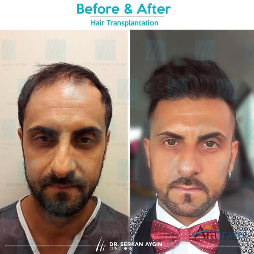 Foto di trapianto di capelli prima e dopo 05
