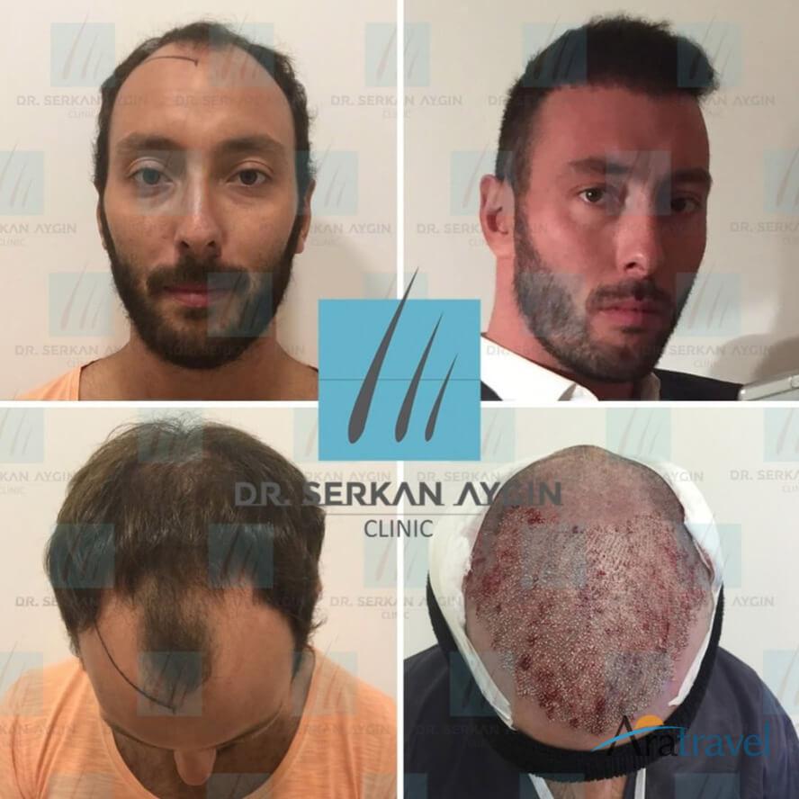 Foto di trapianto di capelli prima e dopo 06
