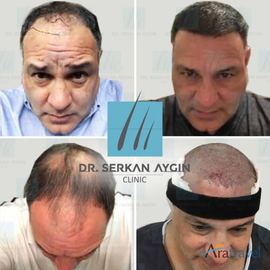 Foto di trapianto di capelli prima e dopo 07