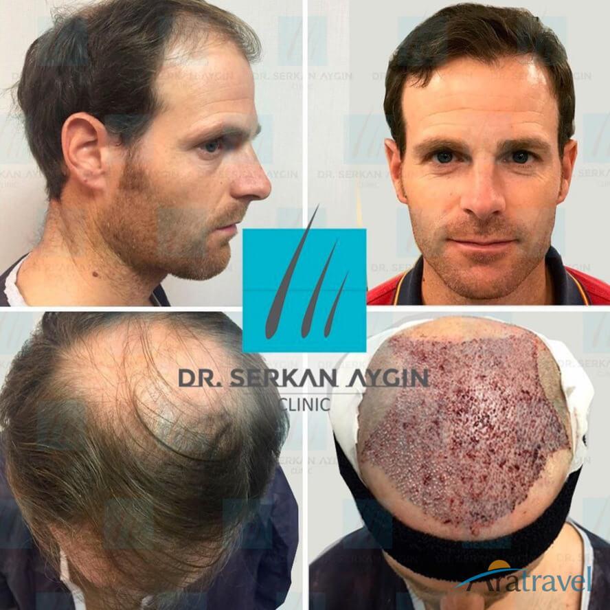 Foto di trapianto di capelli prima e dopo 08
