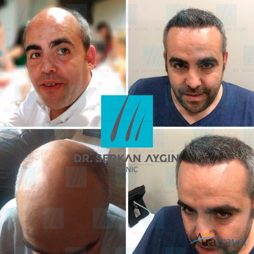 Foto di trapianto di capelli prima e dopo 09