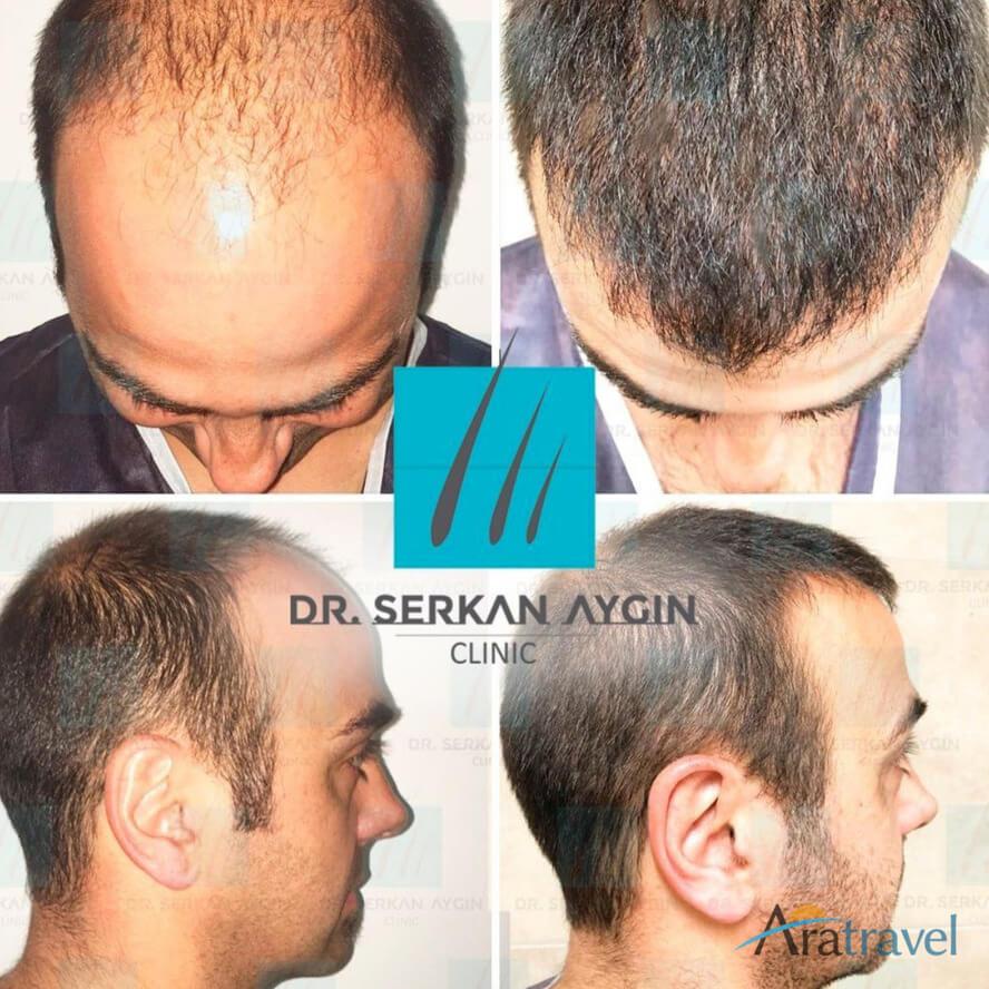Foto di trapianto di capelli prima e dopo 010