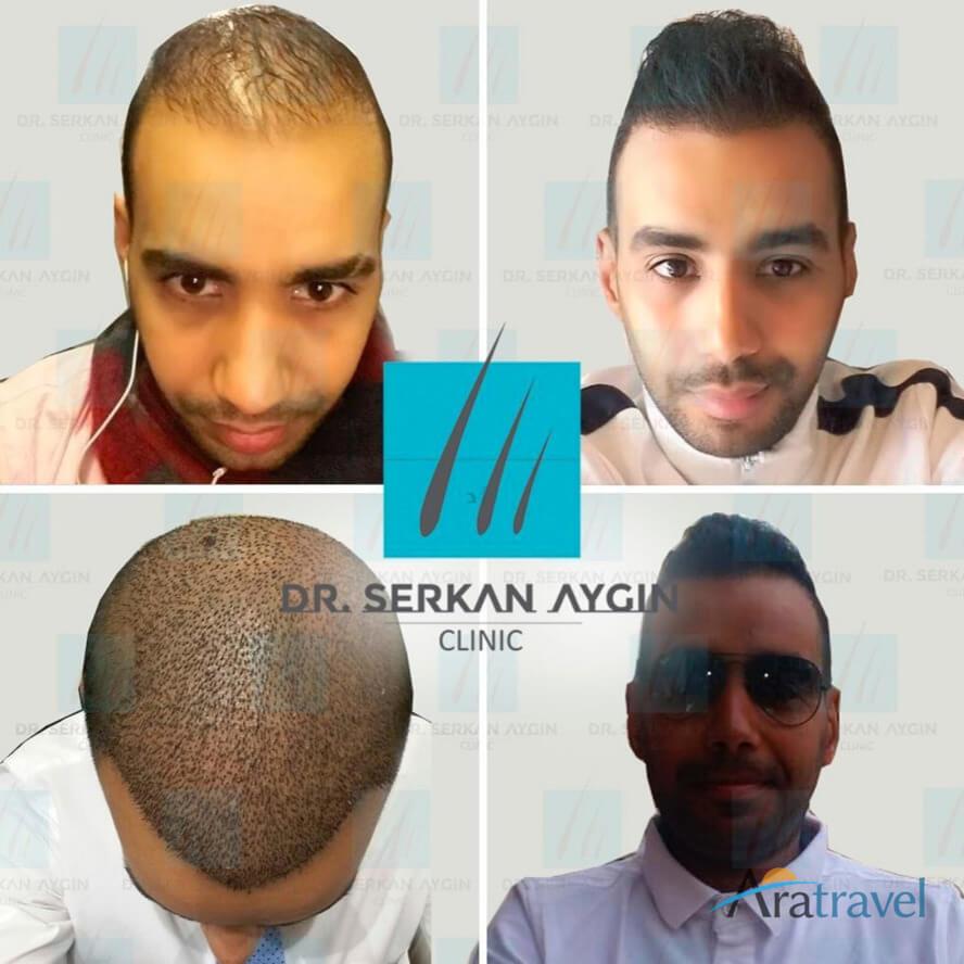 Foto di trapianto di capelli prima e dopo 011