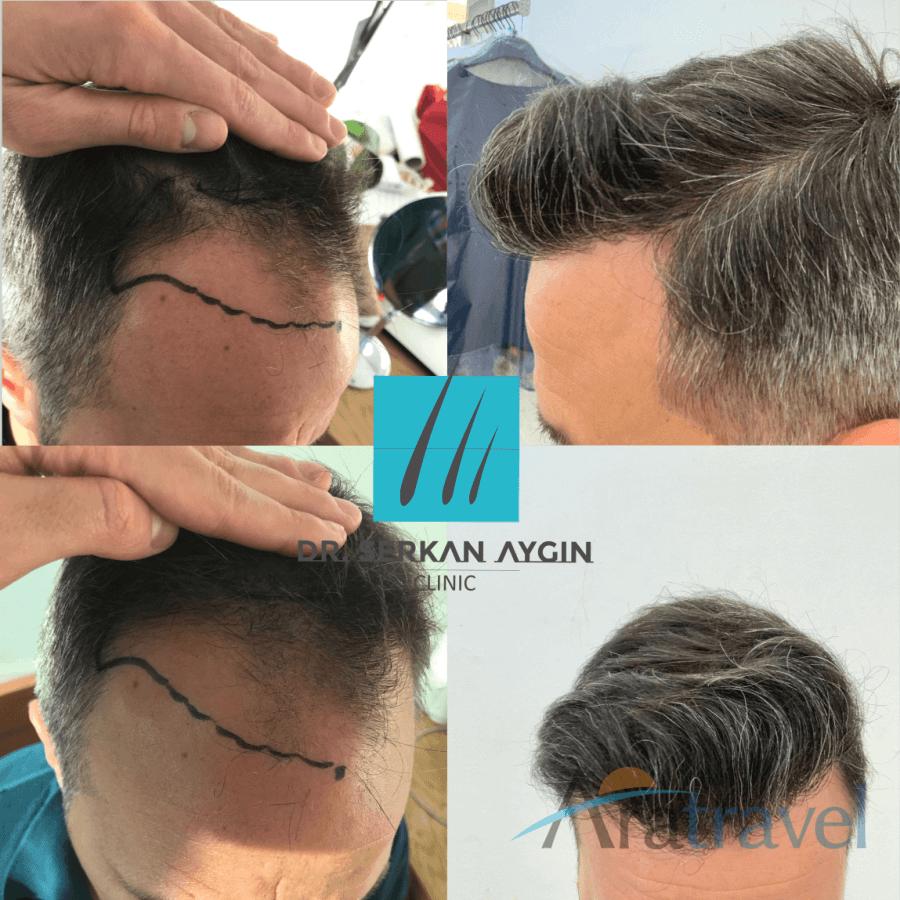 Foto di trapianto di capelli prima e dopo 2019