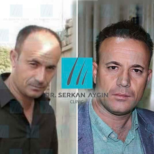 Foto di trapianto di capelli prima e dopo 3
