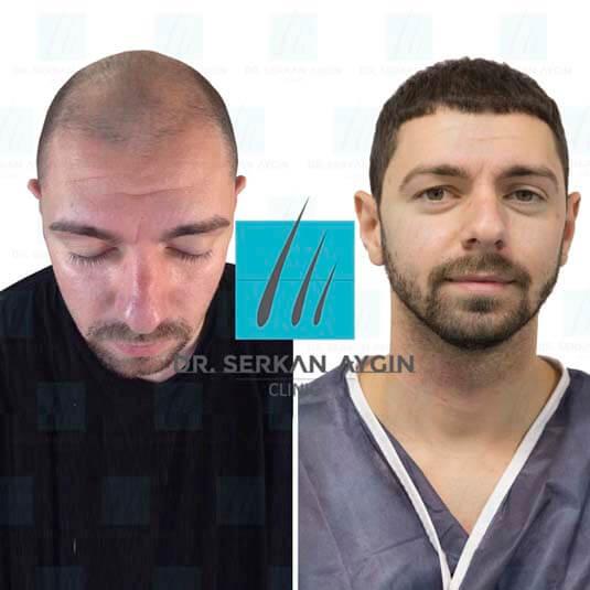 Foto di trapianto di capelli prima e dopo 5