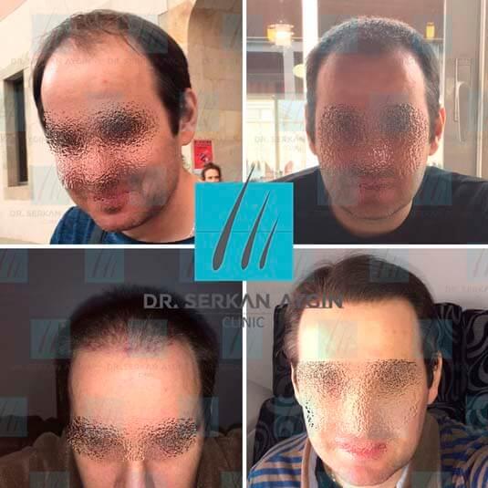 Foto di trapianto di capelli prima e dopo 6