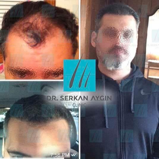 Foto di trapianto di capelli prima e dopo 7