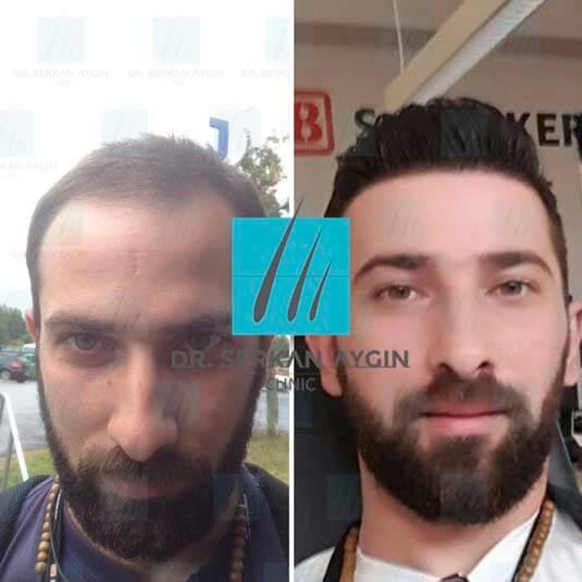 Foto di trapianto di capelli prima e dopo 8