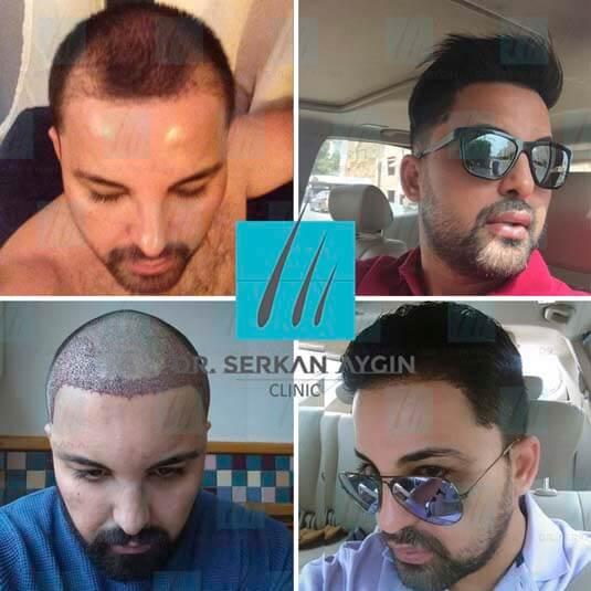 Foto di trapianto di capelli prima e dopo 9
