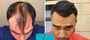Trapianto capelli di Michele R. prima e dopo