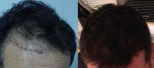 Trapianto capelli di Paolo prima e dopo
