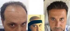Trapianto capelli di Tommaso prima e dopo