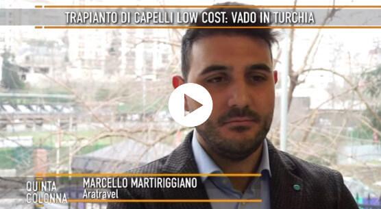Trapianto capelli Quinta Colonna - Aratravel 2