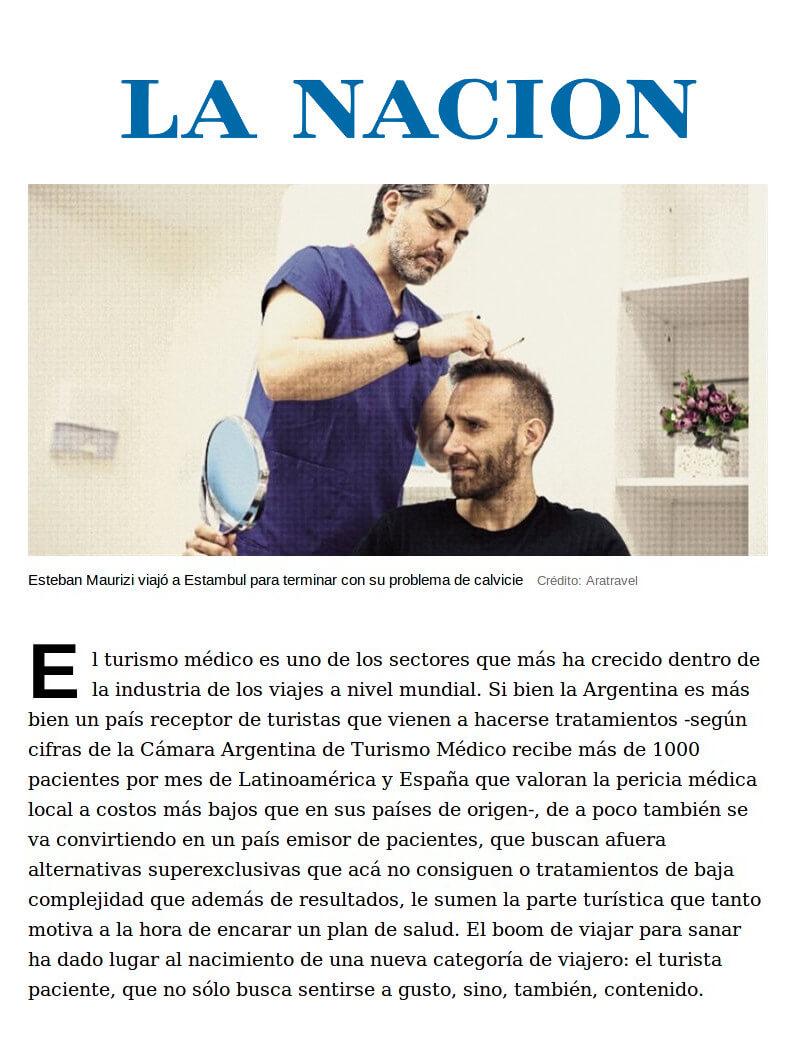 La Nacion - trapianto di capelli
